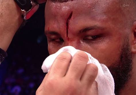Badou Jack suffers nasty cut in middle of head during